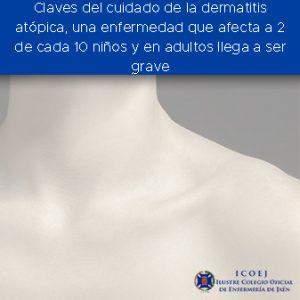 dermatitis enfermedad